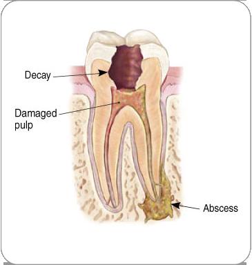 Endodontic Procedure | Dentkos Endodontics