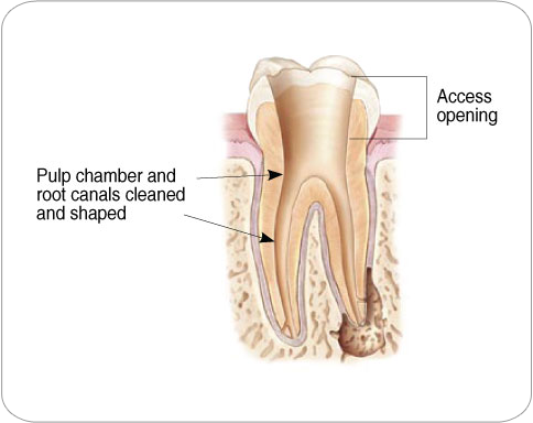 Access Opening | Endodontic Treatment
