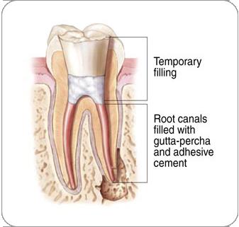 Endodontic Procedure - Temporary Filling | Dentkos Endodontics