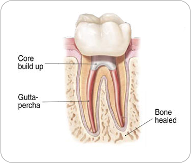 Endodontic Procedure - fixing a dental crown | Dentkos Endodontics