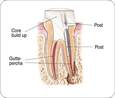 Endodontic Procedure - tooth restoration | Dentkos Endodontics