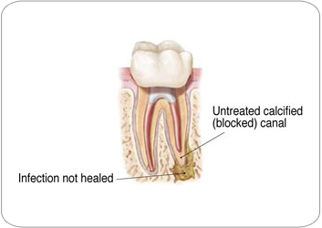 Endodontic Retreatment |Strongsville, OH Endodontist