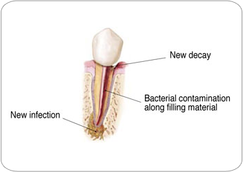 Endodontic Retreatment - New Decay and Infection|Strongsville, OH Endodontist