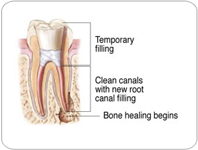 Endodontic Retreatment - Temporary Filling |Strongsville, OH Endodontist