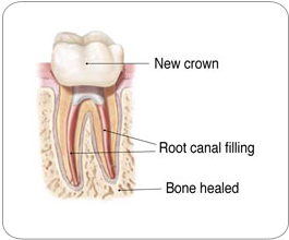 Endodontic Retreatment - New Crown|Strongsville, OH Endodontist