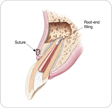 Endodontic Surgery - Apicoectomy Procedure - Suture | Dentkos Endodontics
