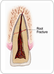 Root Fractures